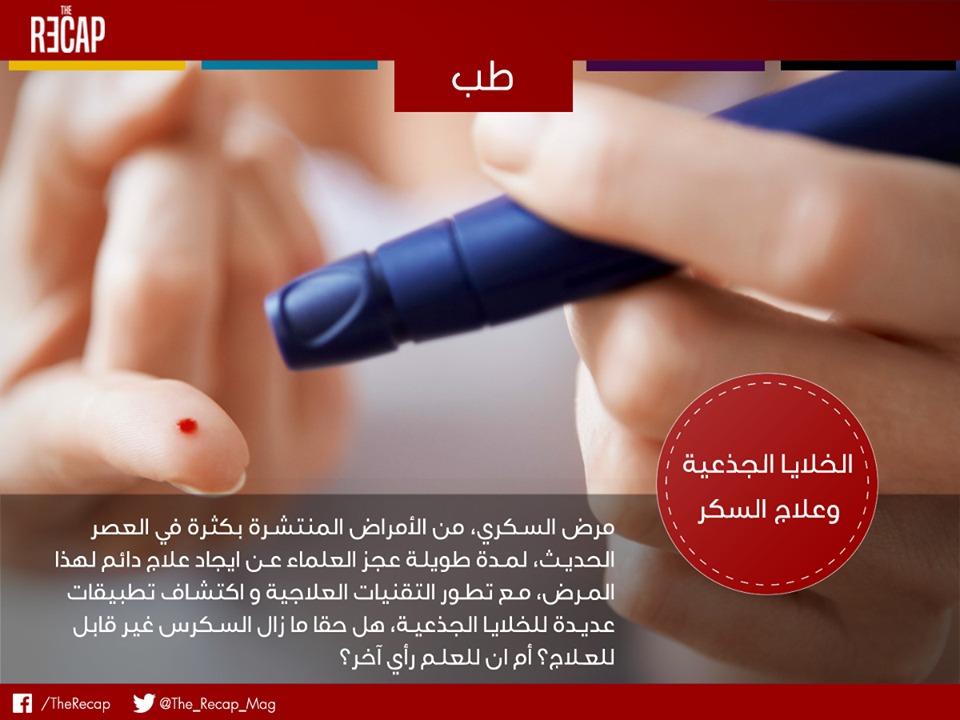 الخلايا الجذعية وعلاج السكر