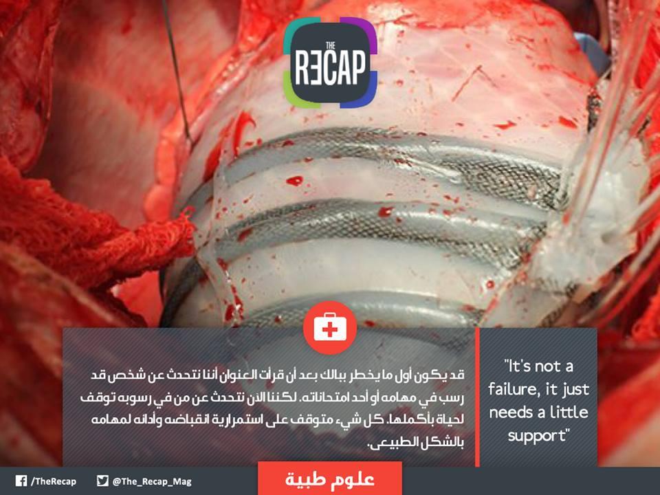 علاج لتوقف عضلة القلب