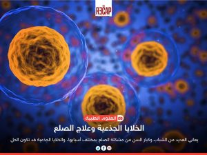 الخلايا الجذعية وعلاج الصلع