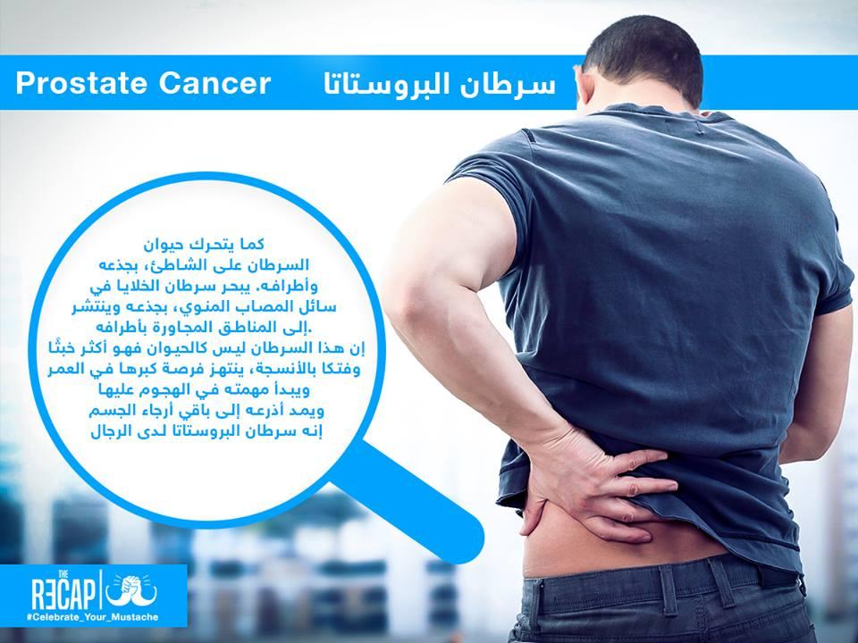 سرطان البروستاتا