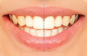 تماثل الاسنان