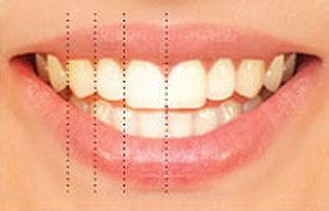 تناسب بعد الاسنان