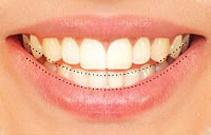 خط الابتسامة