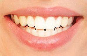 زوايا الاسنان القاطعة