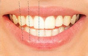 محور الأسنان
